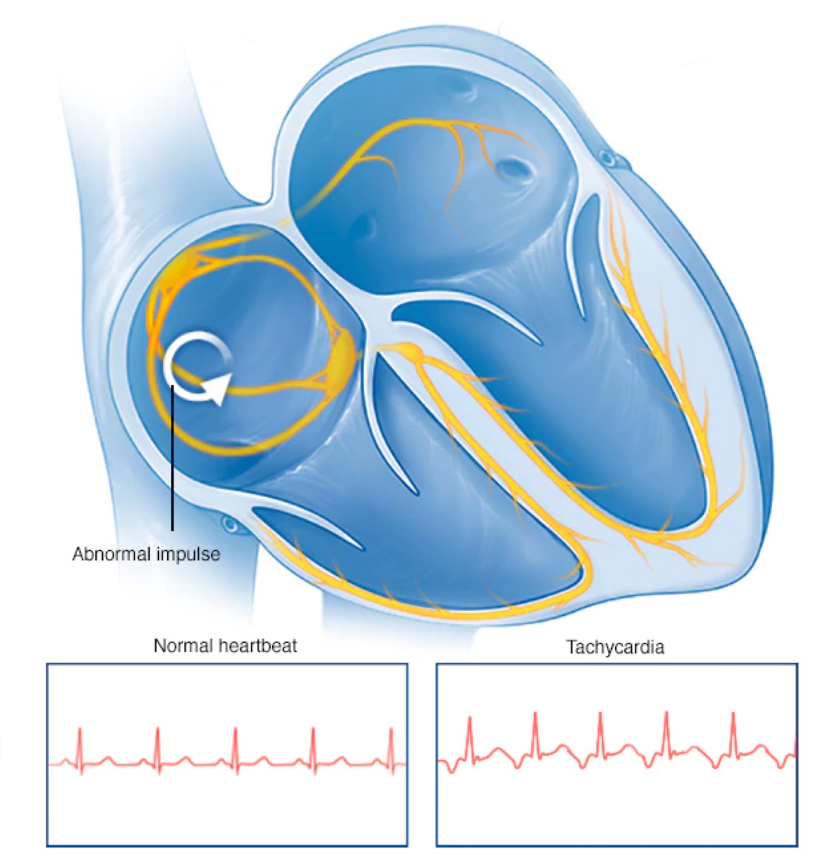 Tachycardia - Comparison between Normal and Tachycardia Heart Beat Graphics