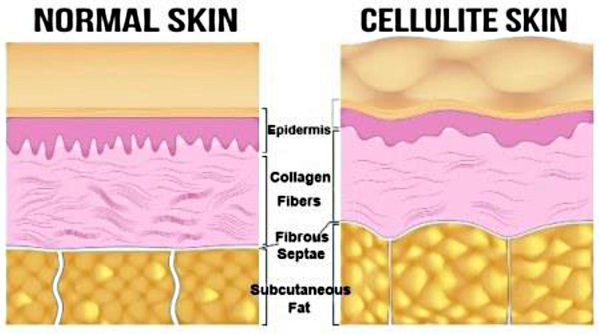 Normal Skin vs Cellulite Skin