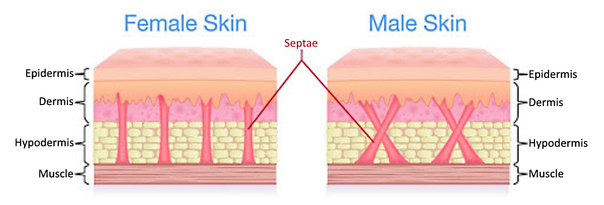 Normal Skin Fibrous Septae Bands vs Cellulite Skin Fibrous Septae Bands