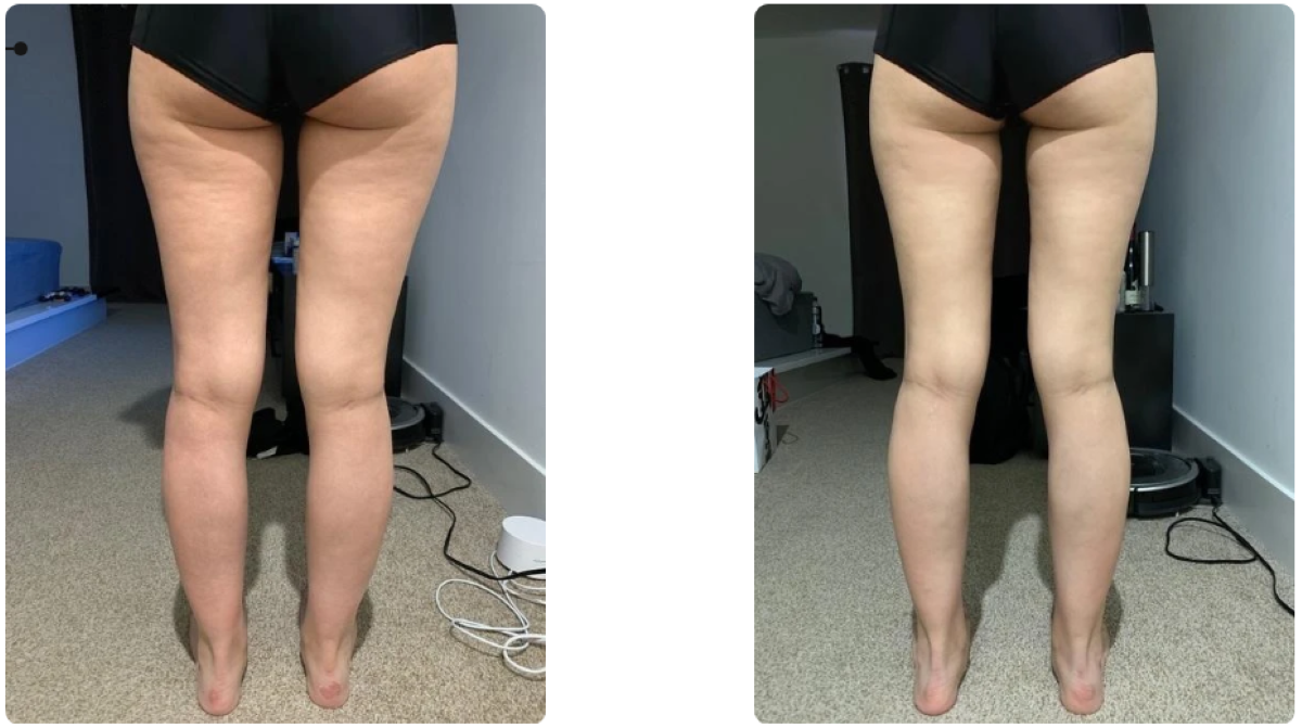 Reduces Appearance of Cellulite