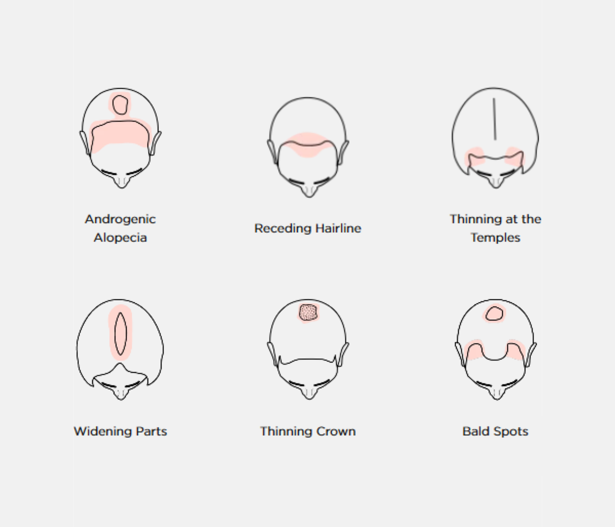 The iRestore Professional can help fight 6 Different Hair Loss Conditions