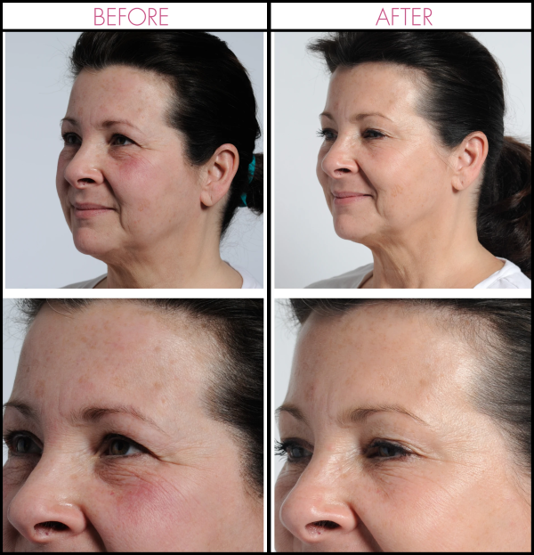 Incredible clinically proven benefits that help reduce both fine lines and wrinkles for visible results at home (Before & After)